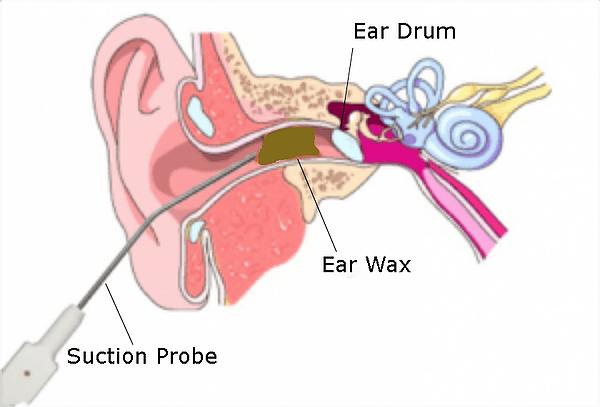 Ear Microsuction London